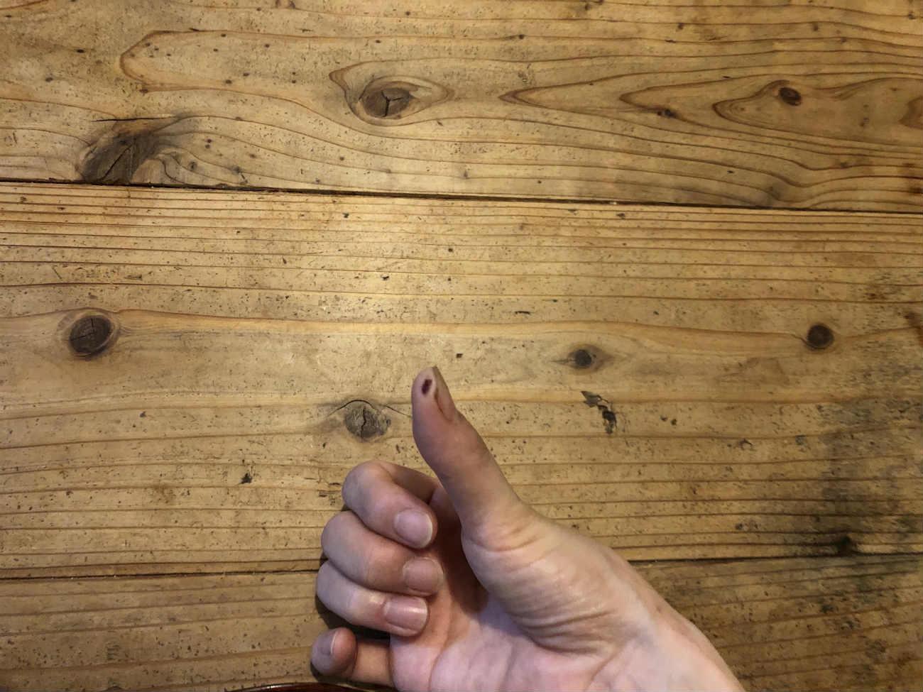 スライサーで切った親指
